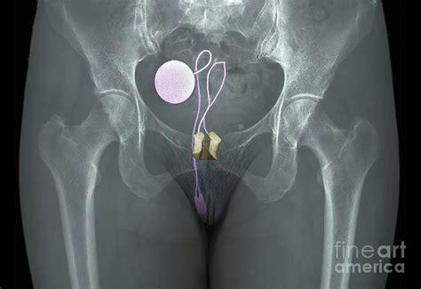 artificial bladder picture 17