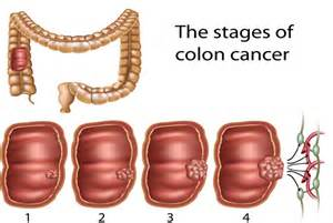 Growth on colon picture 1