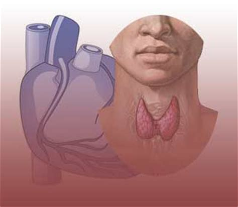 heart arrythmia and thyroid picture 4