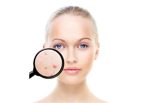 western medicine for acne picture 15
