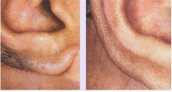 ear hair removal picture 1