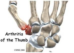 sore thumb joint picture 9