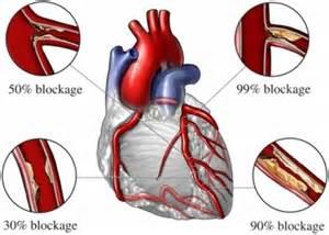 Cholesterol triglcerides picture 15