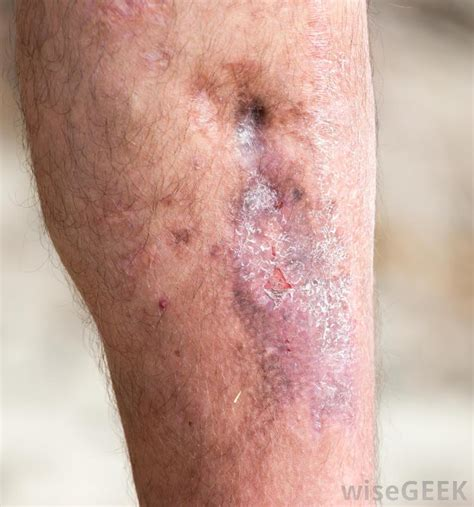 what causes boils on the skin picture 2