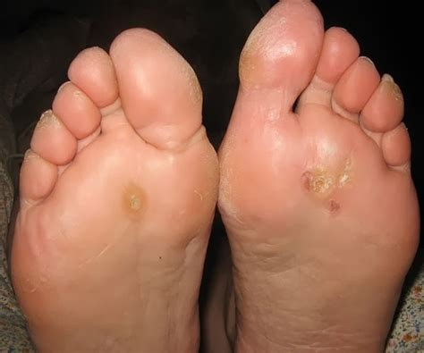 cause of warts picture 9