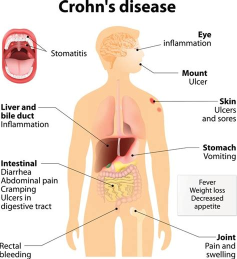 inflamatory bowel disease picture 6