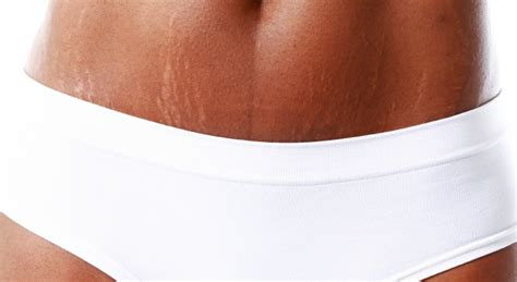 does have stretch marks picture 14