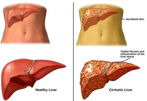 sclerosis of the liver picture 1