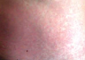 aids skin rash picture 10
