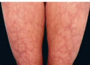 skin rash livedo picture 11