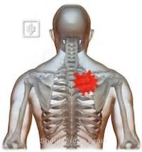 causes of pain in tip of shoulder, liver picture 11