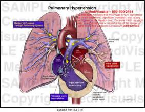pulmonary hypertension picture 5