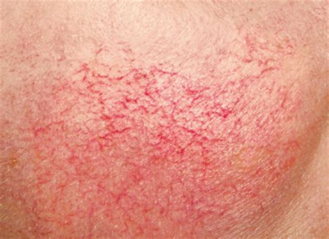 couperose skin problem picture 10