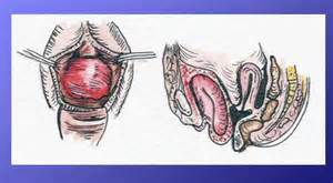 bladder prolapse symptoms picture 1