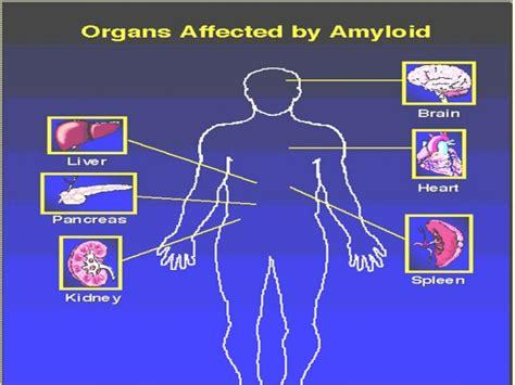 central hypothyroidism picture 9