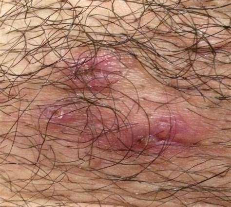 pictures of herpes in the genital area picture 9