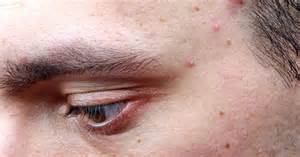 moderate ion good for acne picture 9