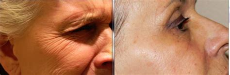 az vein skin rejuvenation picture 9