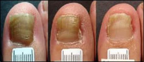 podiatrists who offer laser treatment for nail fungus in chicago, il picture 5