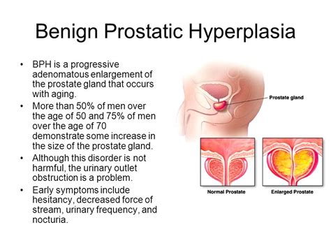 hypertrophy benign of prostate with urinary obstruction picture 3