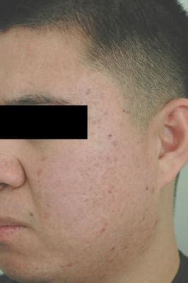 acne scar removal surgery picture 18
