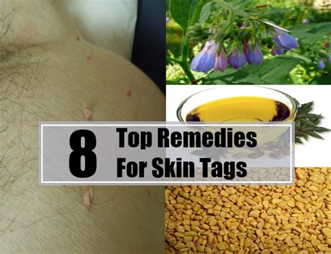 skin tag home remedies picture 14