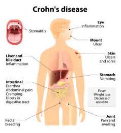 probiotics and colitis picture 1