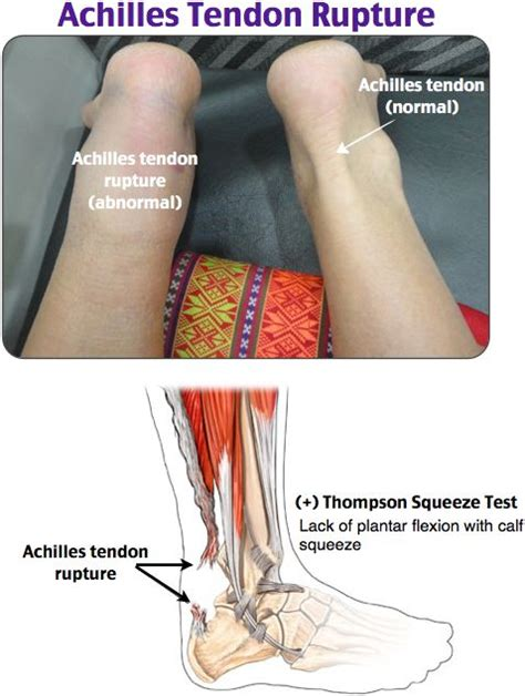 ankle joint effusion and ruptured archilles tendon picture 10
