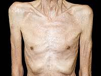 causes and cures of muscle wasting picture 18