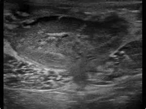 persistent el loop right ovary picture 6