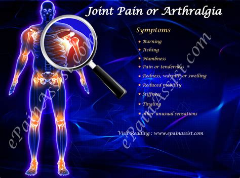 joint pain aches picture 1