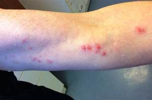 genital herpes and shingles picture 7