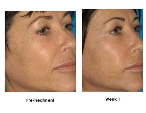 anti aging treatment for hair picture 7