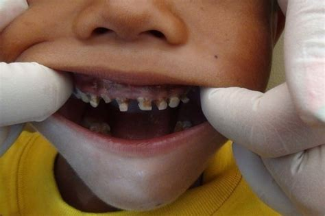 childrens teeth picture 13