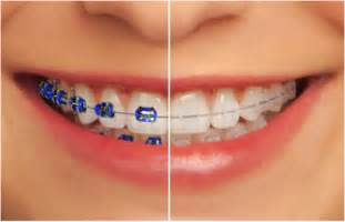 colored braces teeth picture 1