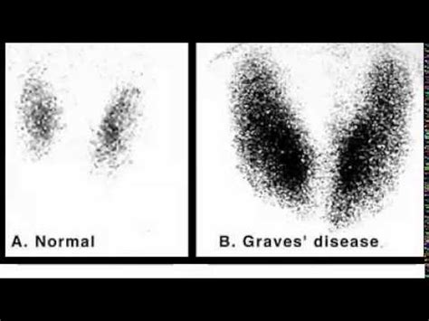 abnormal thyroid scan and uptake picture 14