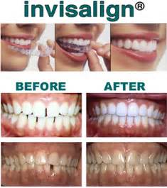 bleaching teeth pain picture 10