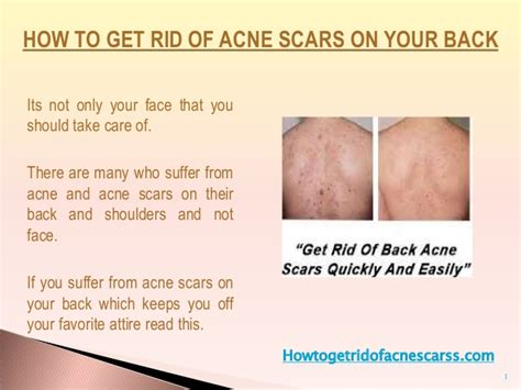 how long should you use one antibiotic acne picture 11