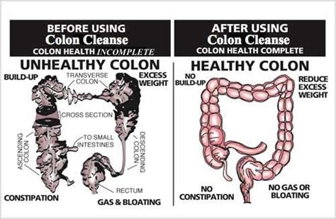 colon cleansing medication picture 15