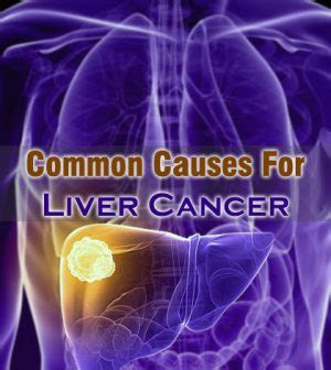 how common is liver cancer picture 2