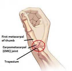 cmc joint picture 2