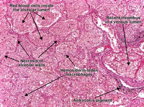 Intestinal thrombus picture 11