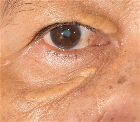 xantholasma eye cream hamdard picture 1