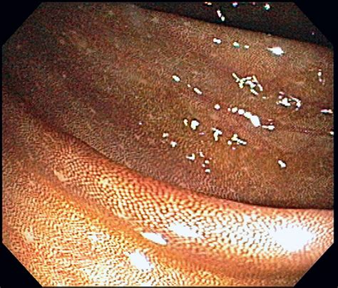 what is melanosis in the colon picture 6