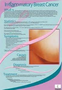 inflammatory breast cancer pictures 2014 picture 1