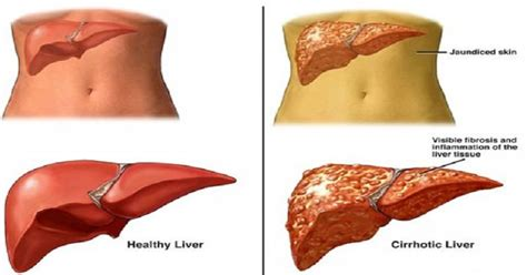 are there prescribed drugs known to increase liver picture 4