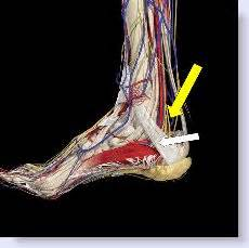 can tarsal tunnel problems restricted blood flow to picture 10