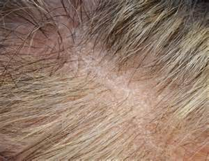 coping hair loss picture 2