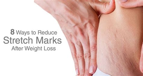 lifting weights to remove stretch marks picture 3