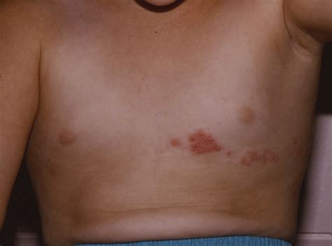 herpes m picture 13